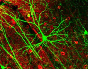 neuronas_edited
